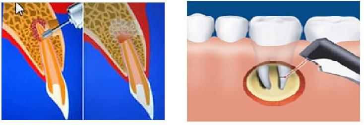 резекция верхушки корня зуба по омс