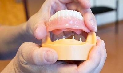 зубные протезы для пенсионеров