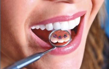 patologicheskaja-stiraemost-zubov-4[1].jpg