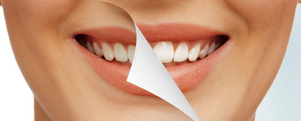 отбеливание зубов в Москве