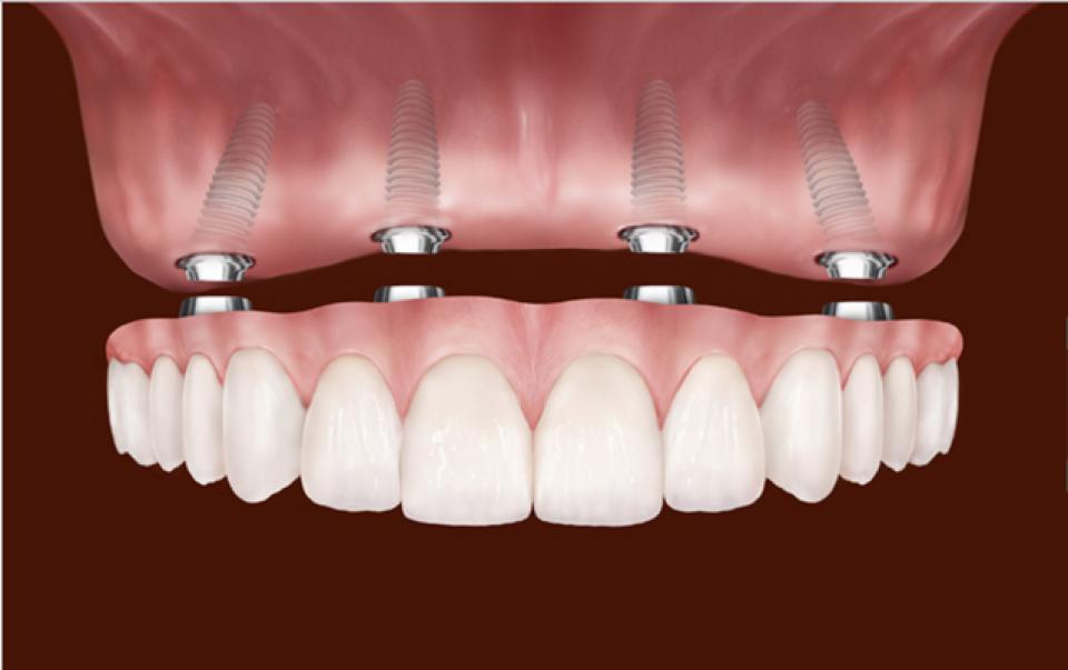 dental-implants-30tlvljxjmau3nie259l34.png